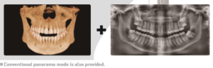 CBCT 2 in 1 image